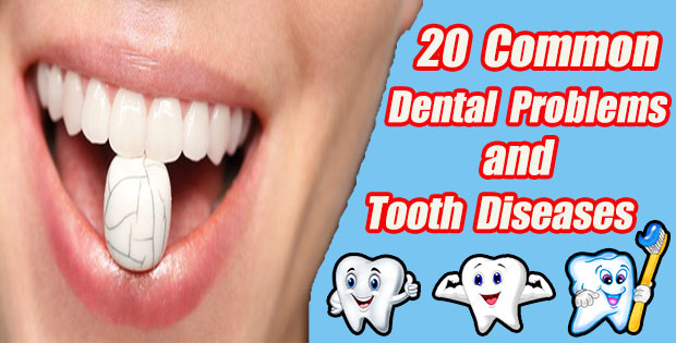 20 Common Dental Problems and Tooth Diseases