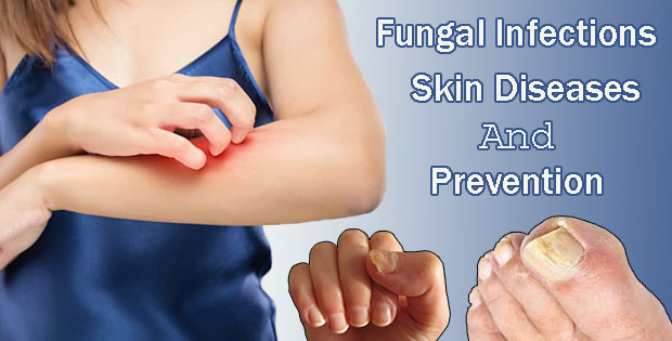 Fungal Infections Skin Diseases And Prevention